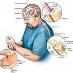 Istraživanje osjetljivosti na bolno podraživanje